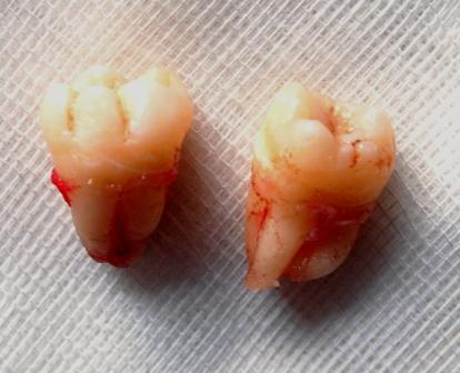 Lower Molar Broke After Car Accident