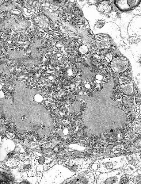 TEM micrograph with numerous rabies virions (small dark-grey rod-like particles) and Negri bodies (the larger pathognomonic cellular inclusions of rabies infection)