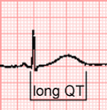 Long QT interval.png