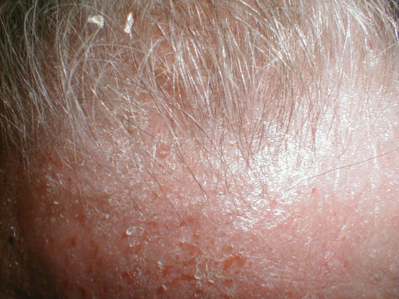 Atopic dermatitis: MedlinePlus Medical Encyclopedia