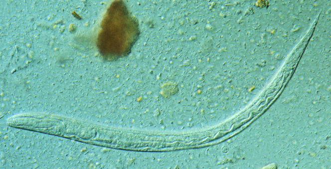 First stage larva (L1) of S. stercoralis