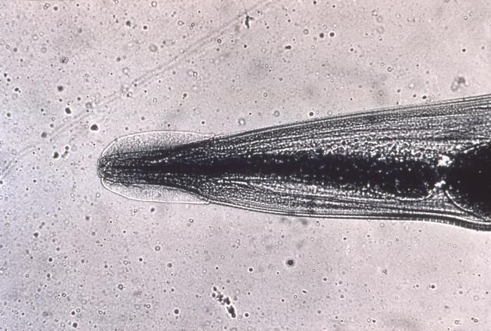 enterobiasis icd 10