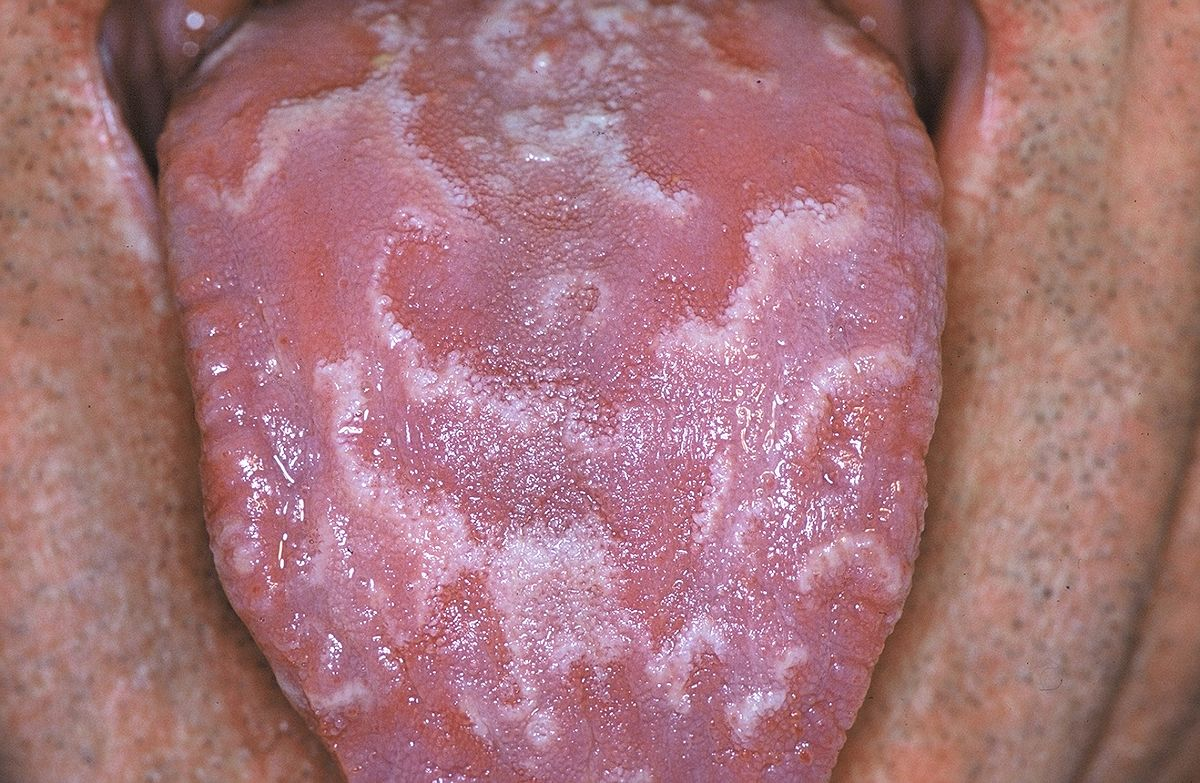 Geographic tongue 01.JPG