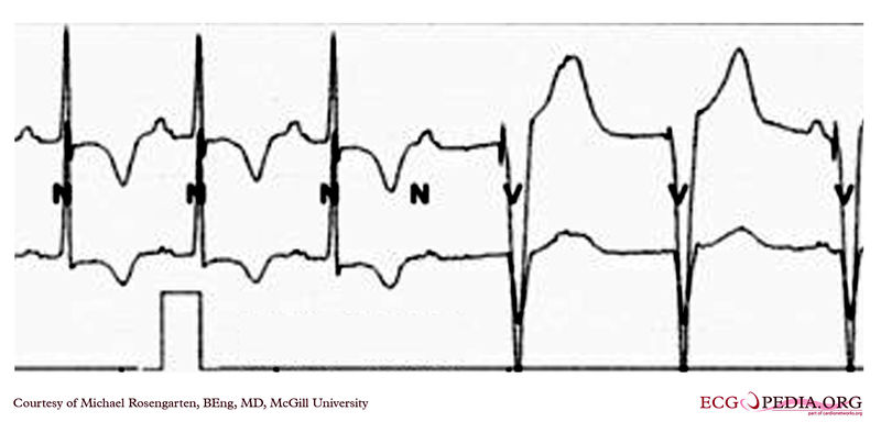 Pacemker in patients with complete heart block.jpg