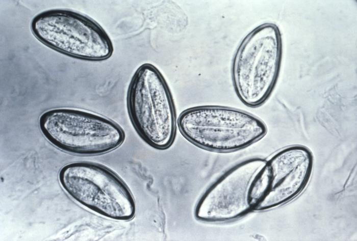 Enterobius vermicularis uptodate, Oxiuri la femei, Oxiuroza (Enterobioza)