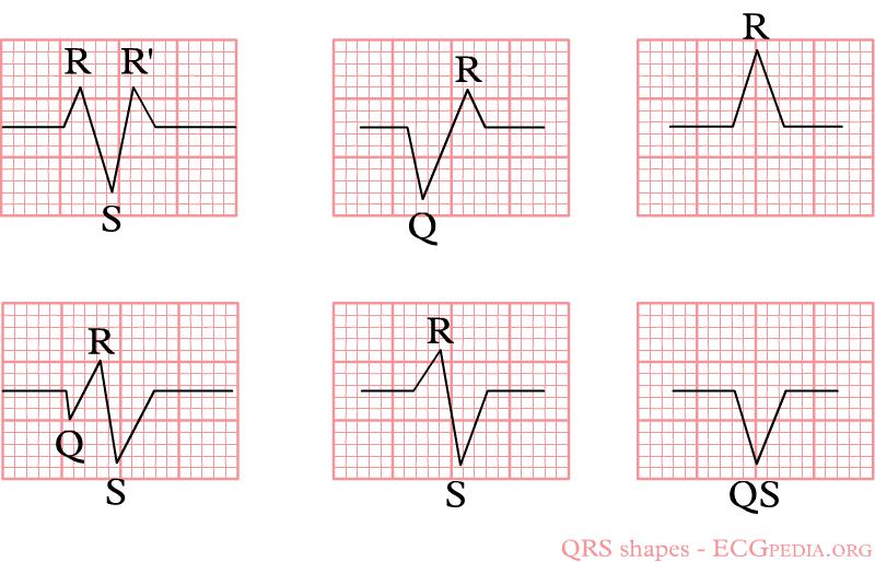 Qrs Complex