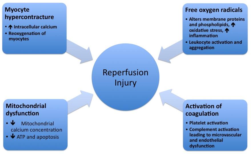 download negative refraction