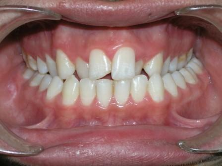 how to correct posterior open bite after invisalign