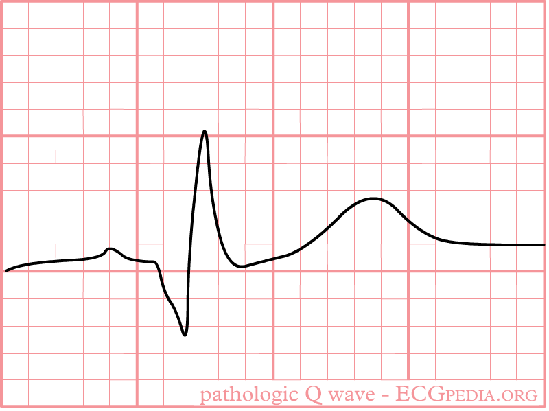 Wave Related Key...Q Wave