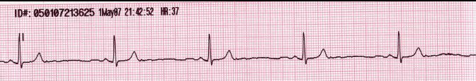 Lead II rhythm generated sinus bradycardia.JPG
