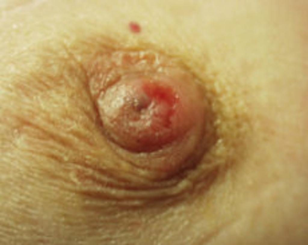 picture of pagets disease of the breast