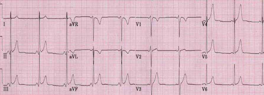 Benign early repolarization.jpg