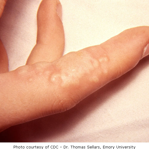 Herpetic whitlow is a cutaneous infection of the distal aspect of the finger caused by herpes simplex virus 2