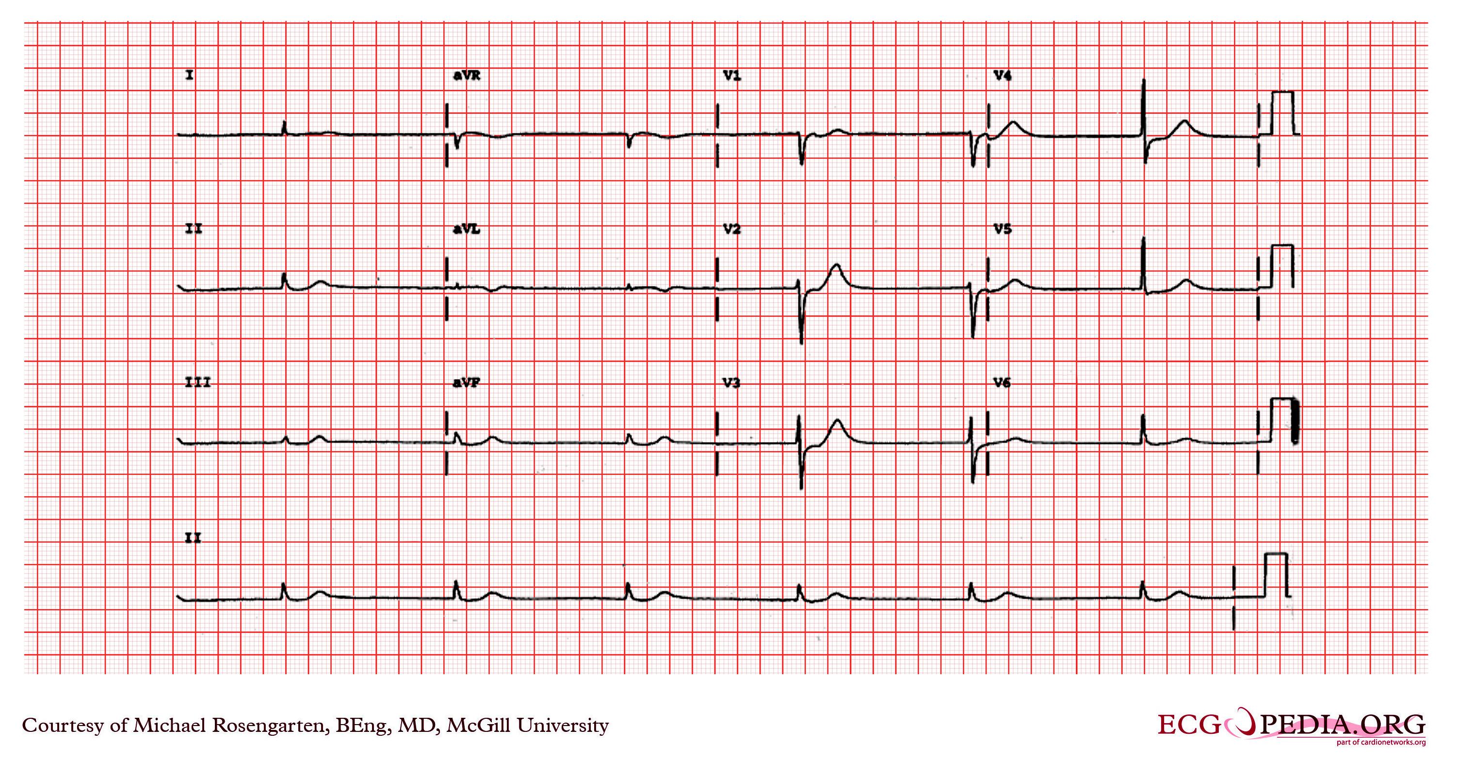 Junctional Bradycardia Ekg Examples Wikidoc