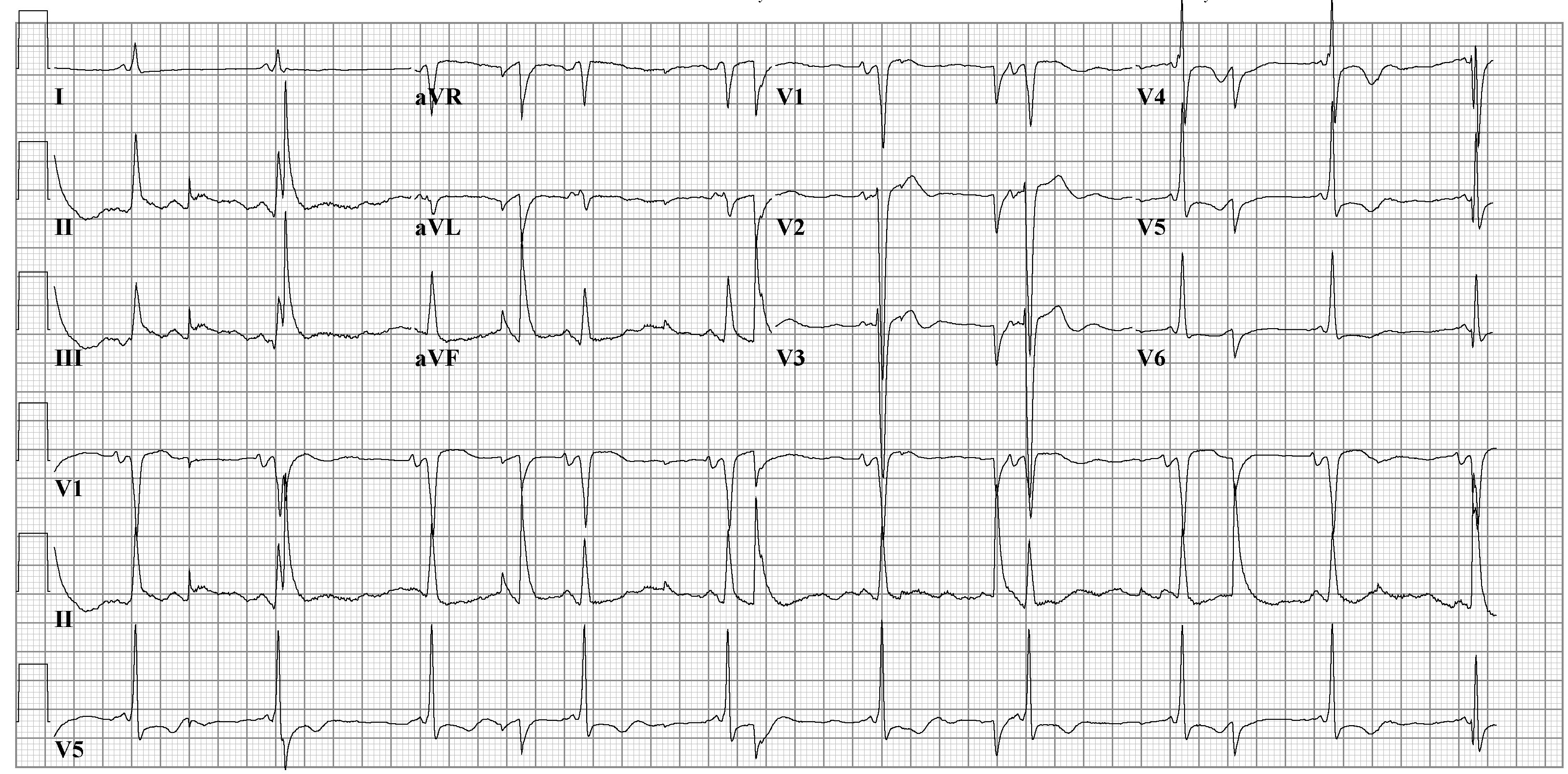 EKG artifacts - wikidoc