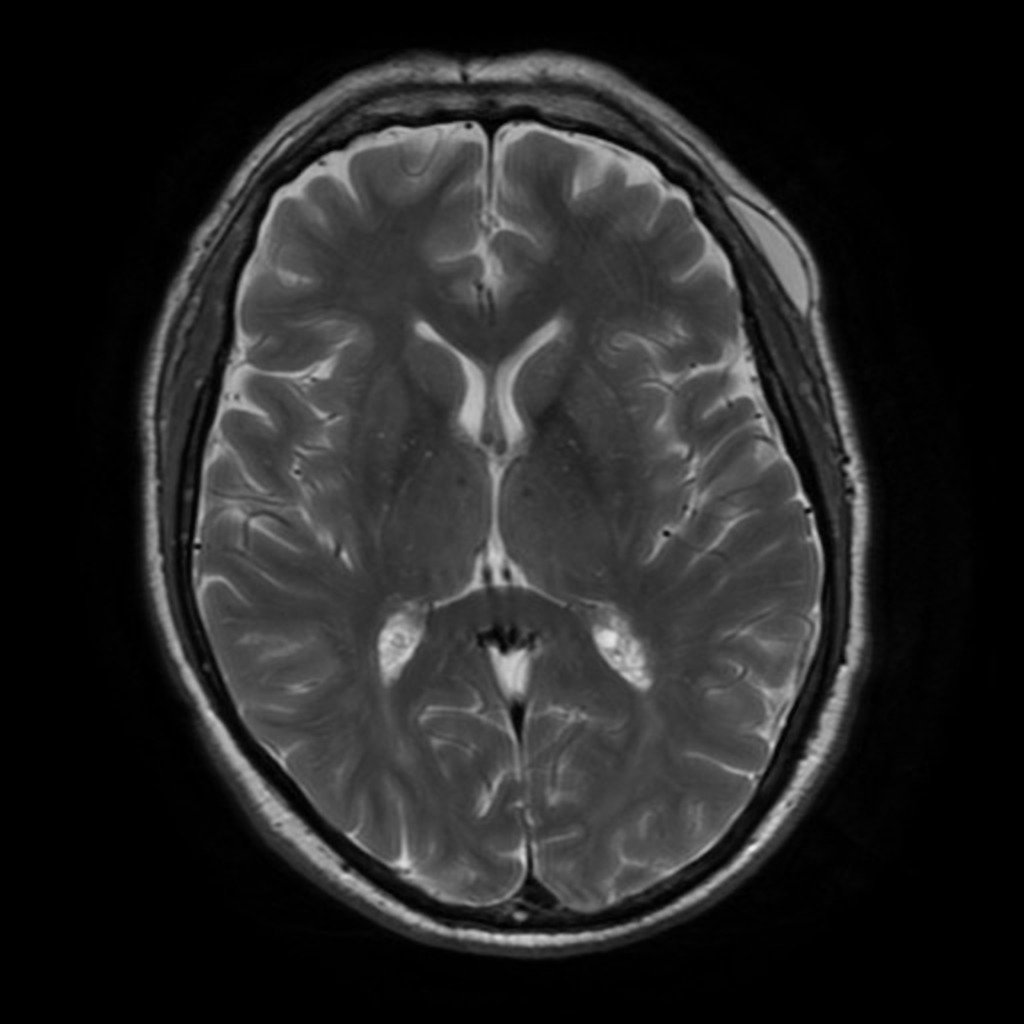 T1 weighted mri blood