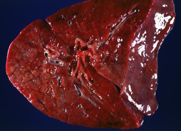 Diagnose: Cystic Fibrosis Diagnose