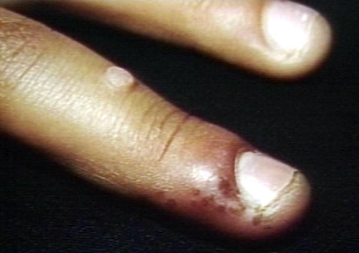 Whitlow.Herpetic disease.Nail.jpg