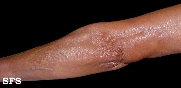 Лечение склеродермии в санкт петербурге