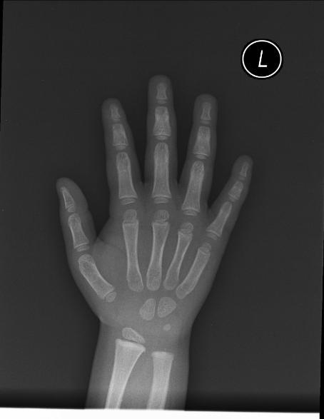 Bone age - wikidoc