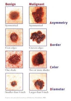 Cancer Symptoms Ear Pain