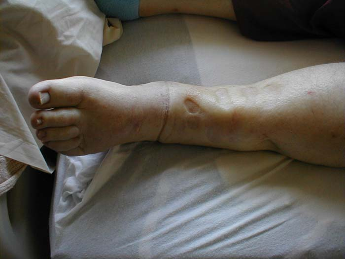 Causes of pitting pedal oedema quincke