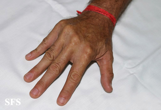 Dupuytren S Contracture Nature Of The Synovial Joint