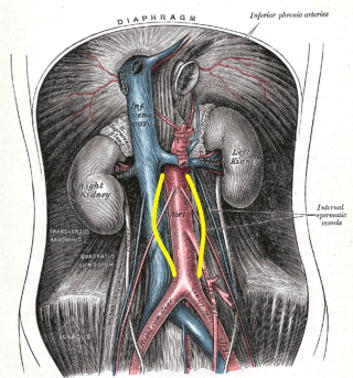 A plate from Gray's Anatomy with yellow lines depicting the most common infrarenal location of the AAA.