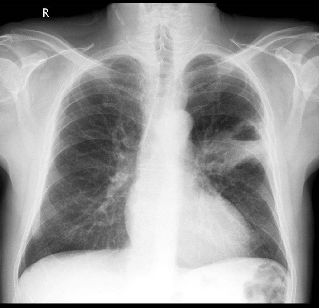 lung mass imaging  gallery
