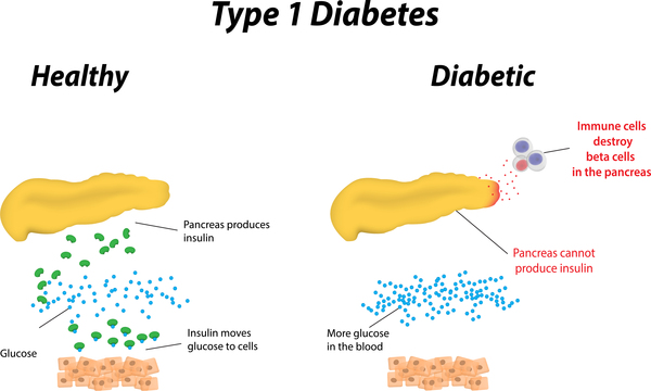a history and definition of diabetes