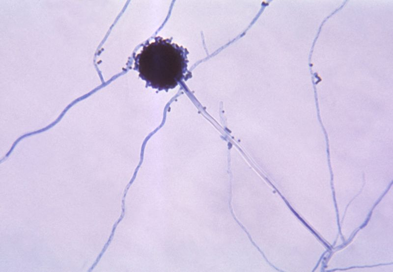 Conidial head of Aspergillus niger