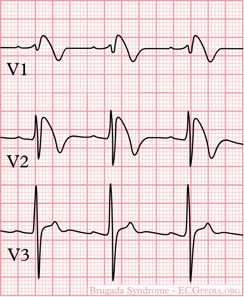 Brugada Syndrome Electrocardiogram Wikidoc