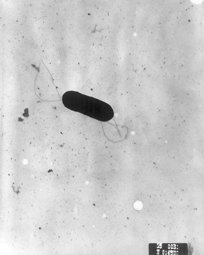 Scanning electron micrograph of Listeria monocytogenes.