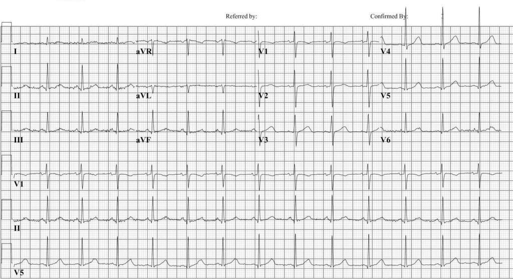 Premature Ventricular Contraction EKG Examples - wikidoc |Ekg Examples