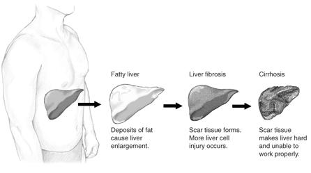 Different stages of liver damage