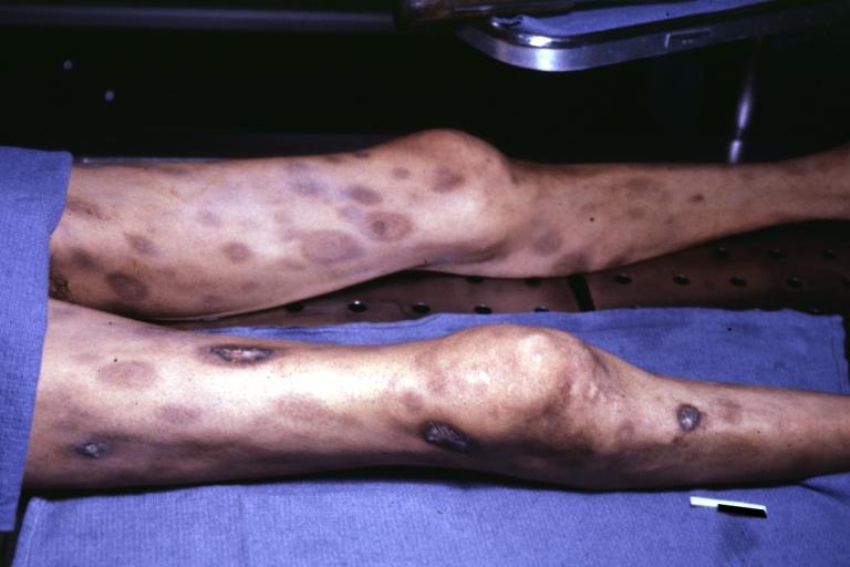 Disseminated intravascular coagulation: old disease, new hope