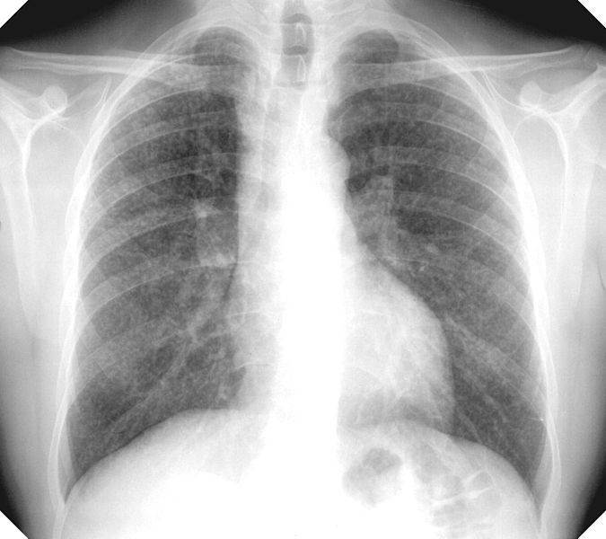 Ray of the lung of a patient with silicosis
