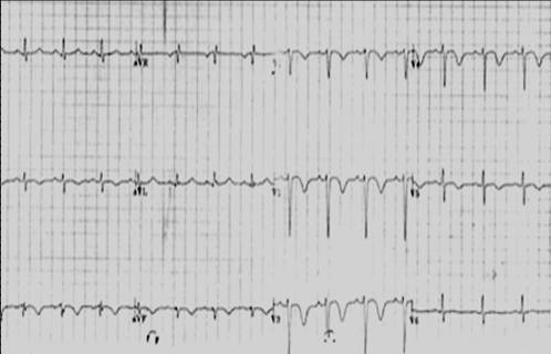 A common ECG finding in pulmonary embolism is anterior T wave inversion.