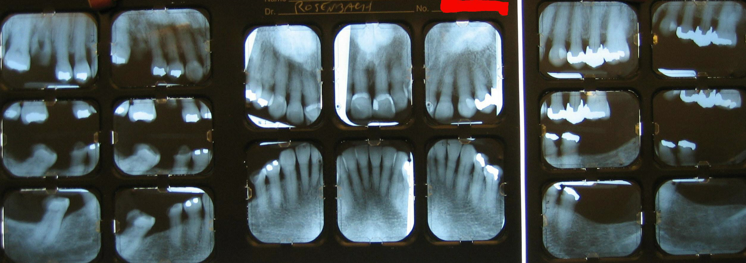 Fms Caries Periapical Ray Of Teeth