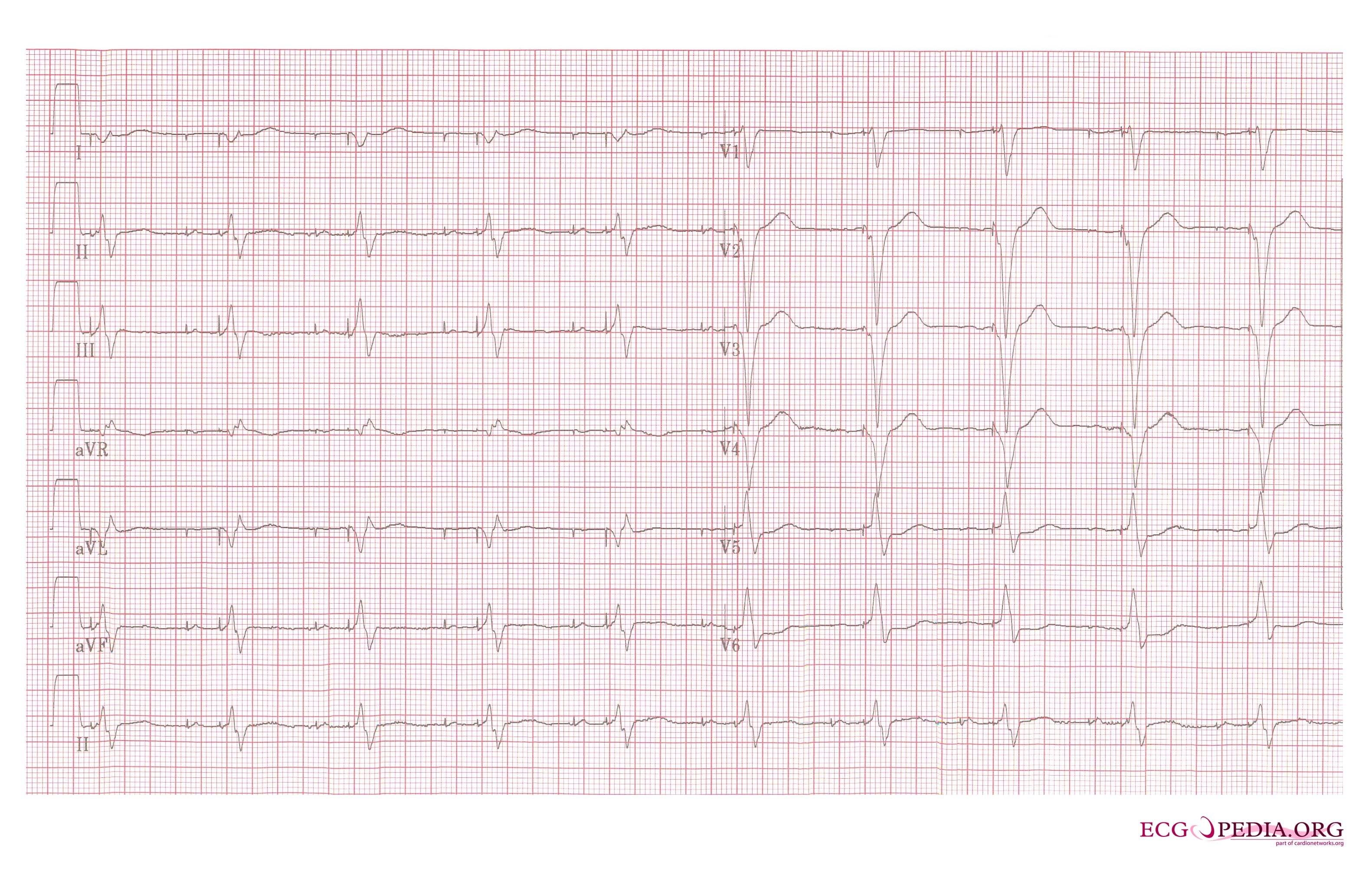 12 Lead Ecg Circuit Wiring Diagram For Professional Simulator The Ekg In A Patient With Pacemaker Wikidoc Placement