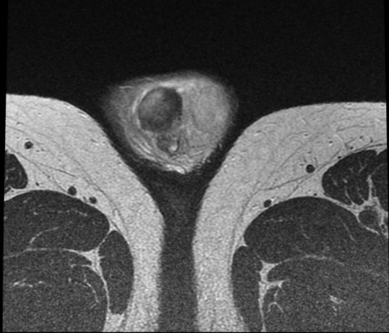 scrotal masses mri