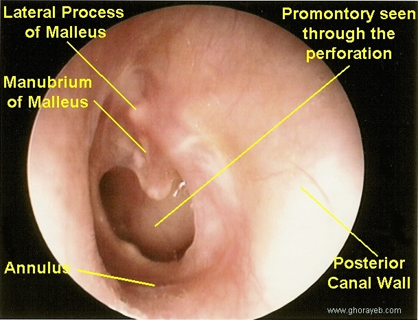 how to tell if ear is perforated