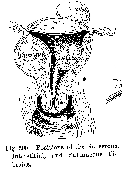 Neoplasm