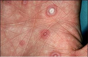 Erythema multiforme target lesions