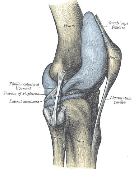Quadriceps tendon wikidoc capsule of right knee joint distended lateral aspect ccuart Choice Image