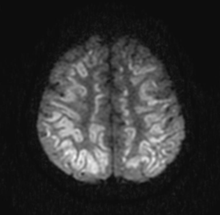 anoxic brain injury mri