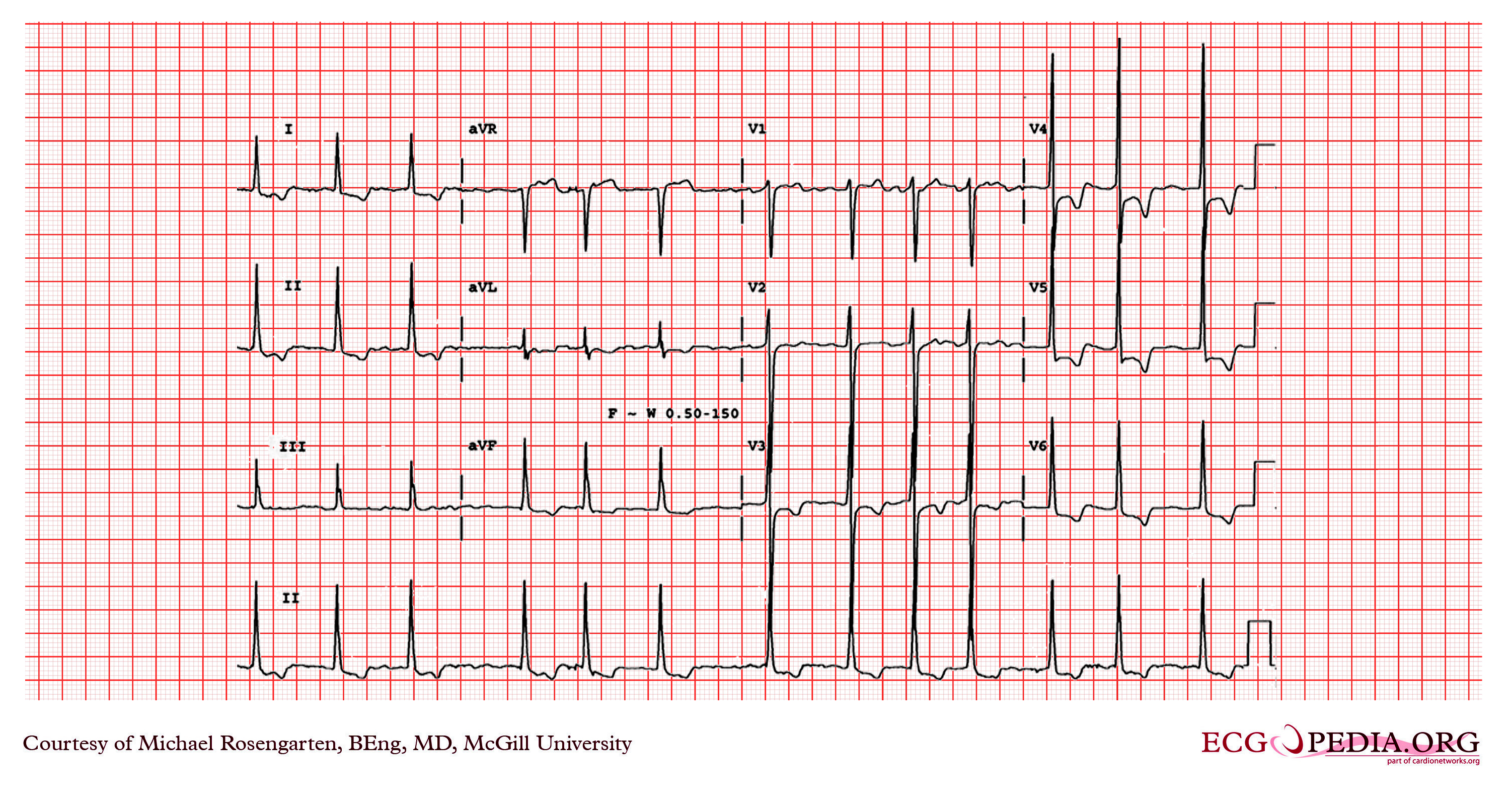 Pulmonary hypertension case studies