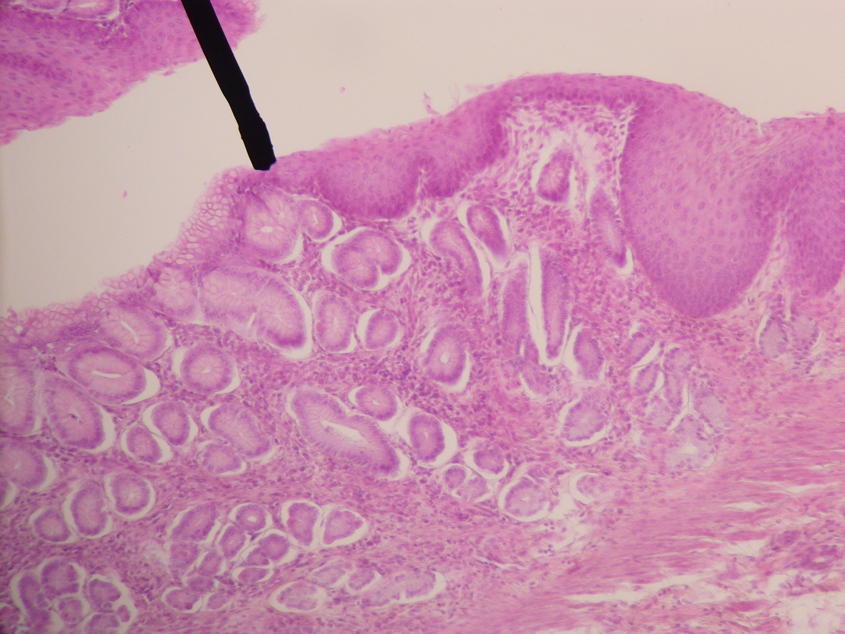 Histological section showing the gastroesophageal junction, with a black arrow pointing to the junction.