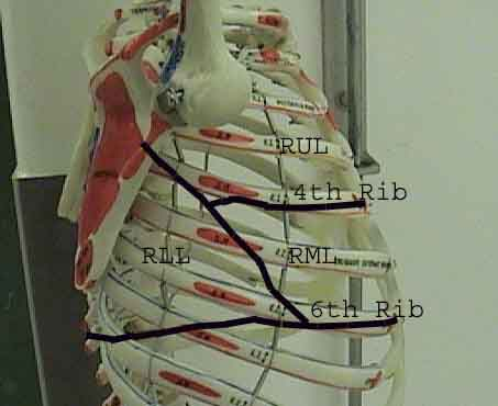 Lung thorax rlat line.jpg