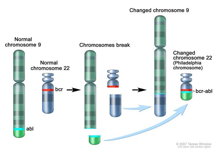adult chronic leukemia